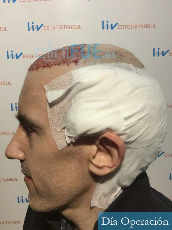 Ibai-40-anos-trasplante-turquia-dia operacion 4