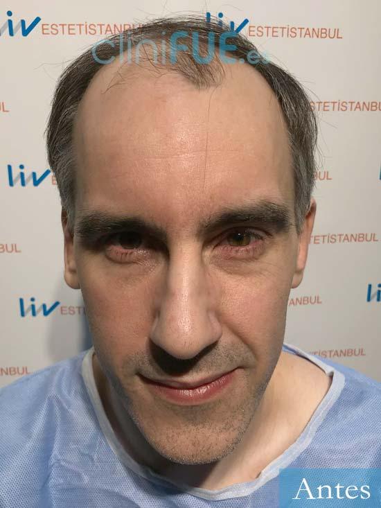 Ibai 40 Guipúzcoa trasplante capilar turquia antes