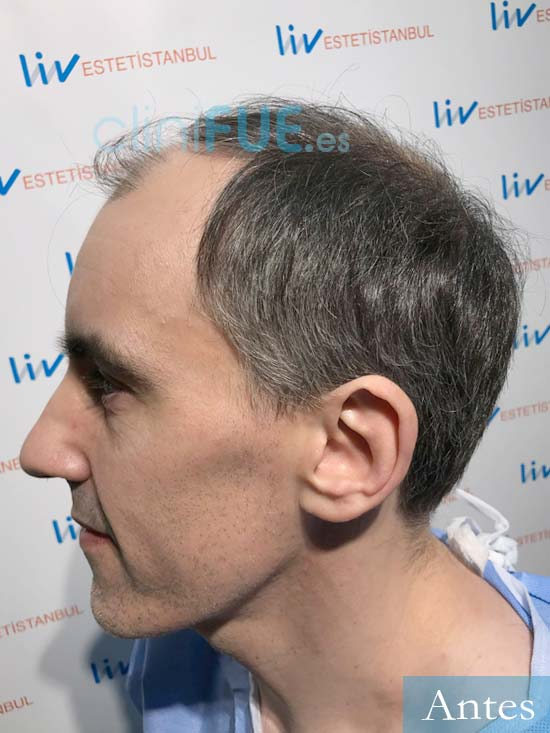 Ibai-40-anos-trasplante-turquia-dia operacion-antes-