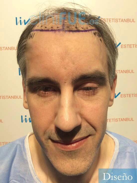 Ibai-40-anos-trasplante-turquia-dia operacion-diseno
