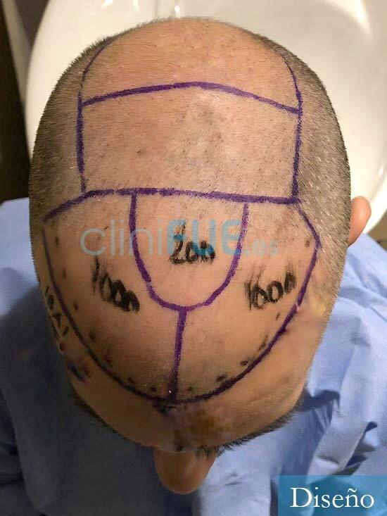 Ibai-40-anos-trasplante-turquia-dia operacion-diseno 2